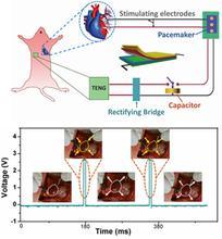 可植入人体的纳米发电机