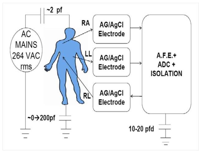 专家话语:如何应对ECG(心电图)设计的六大挑战?