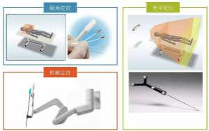 深度报告|手术机器人的临床、市场及技术发展调研