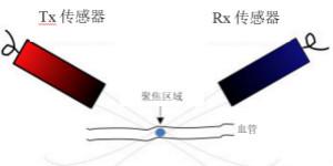 超声系统的�e信号链设计注意事项